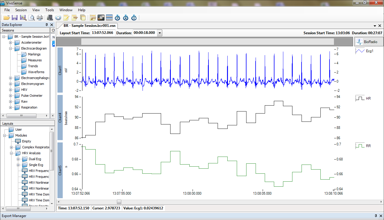wireless ecg data analysis