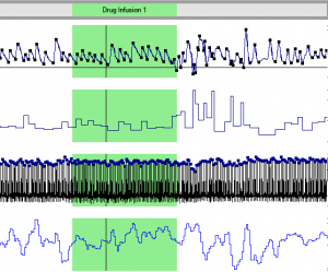 VivoSense for wireless physiological signal processing