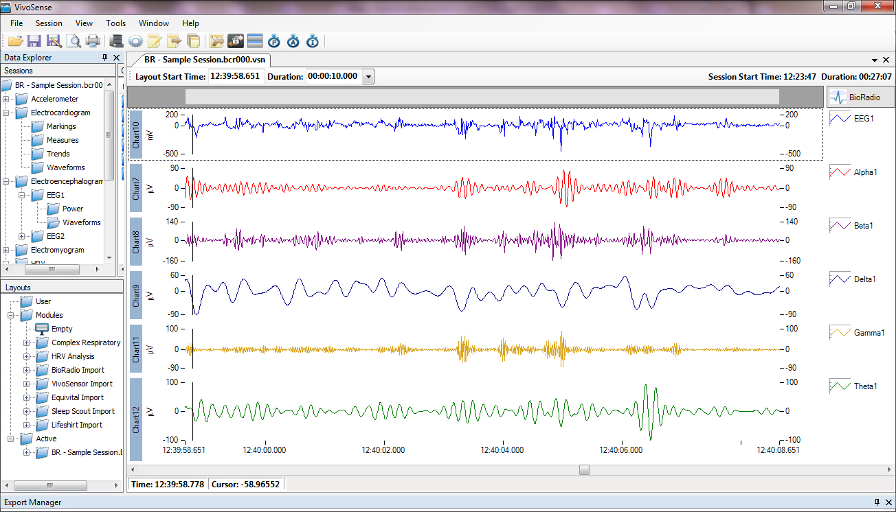 Wireless ECG analysis with VivoSense